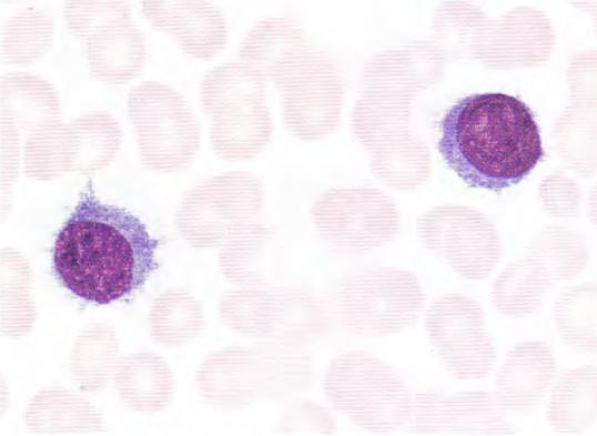 胞体边缘常有不规则小突起,形似绒毛,锯齿,核仁0~2个,胞核圆形或椭圆