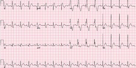 epsilon波的心电图特征   epsilon波的心电图类似右束支阻滞图形,右胸导联v1-v3导联特别是v2导联qrs波群终末部、st段起始部出现的小棘波,即为epsilon波(图1).