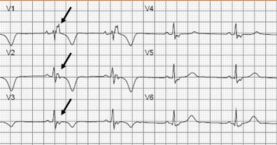 图1 epsilon波的心电图表现