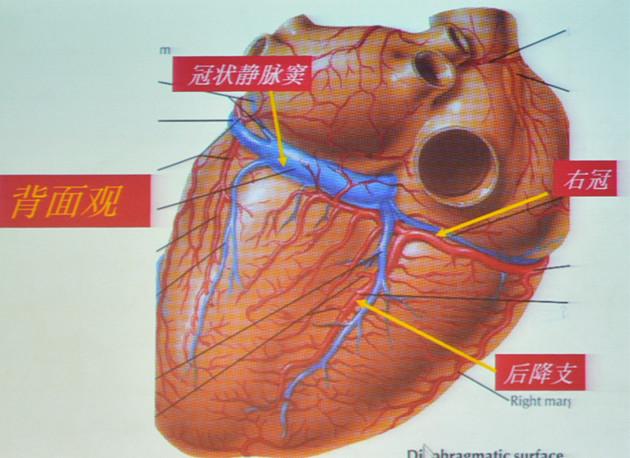 心脏血管前降支_【[CHC2017]杨伟宪:冠脉造影的正确打开方式——25张图搞定冠造 ...