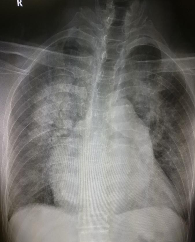 肺瘀血切片手绘