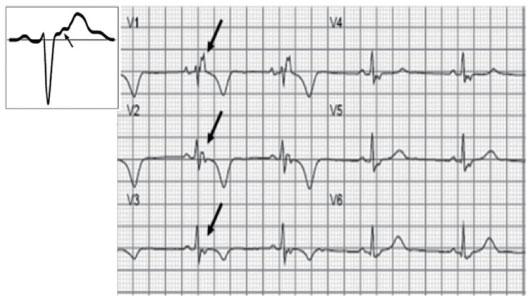 ③t波倒置:v1~v3导联t波倒置,不表现为右束支阻滞,是arvc的次要诊断标准.